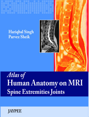 Atlas of Human Anatomy on MRI Spine Extremities Joints PDF