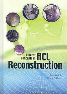 Current Concepts in ACL Reconstruction PDF