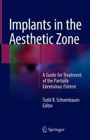 Implants in the Aesthetic Zone PDF