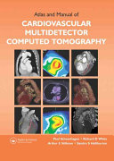 Atlas and Manual of Cardiovascular Multidetector Computed Tomography