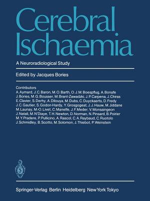 Cerebral Ischaemia