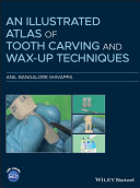 An Illustrated Atlas of Tooth Carving and Wax-Up Techniques