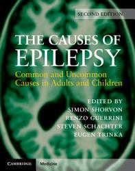 The Causes of Epilepsy PDF