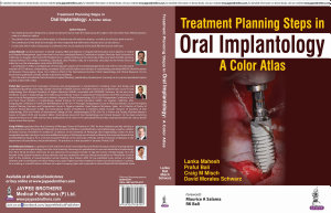 Treatment Planning Steps in Oral Implantology PDF