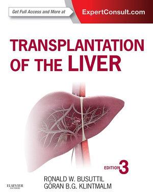 Transplantation of the Liver E Book PDF