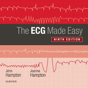 The ECG Made Easy E Book