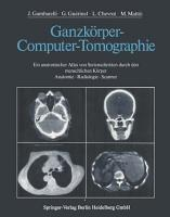 Ganzk  rper Computer Tomographie PDF