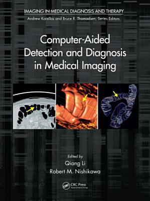 Computer Aided Detection and Diagnosis in Medical Imaging PDF