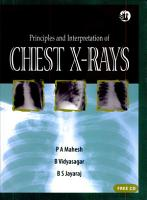 Principles and Interpretation of Chest X rays PDF