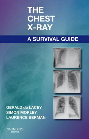 The Chest X Ray  A Survival Guide E Book