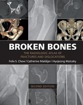 Broken Bones: The Radiologic Atlas of Fractures and Dislocations, Edition 2