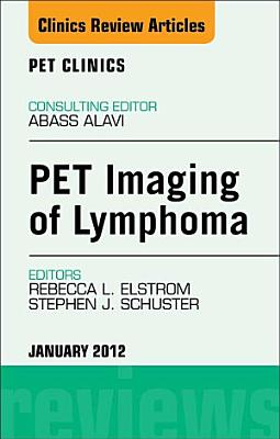 PET Imaging of Lymphoma  An Issue of PET Clinics   E Book PDF