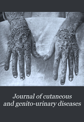 Journal of Cutaneous and Genito-urinary Diseases: Volume 16