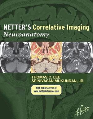 Netter   s Correlative Imaging  Neuroanatomy E Book PDF