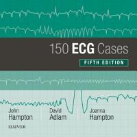 150 ECG Cases PDF
