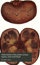 Tuberculosis of the genito-urinary organs, male and female