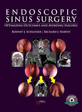 Endoscopic Sinus Surgery PDF