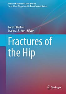 Fractures of the Hip PDF