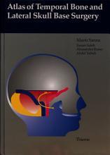 Atlas of Temporal Bone and Lateral Skull Base Surgery PDF