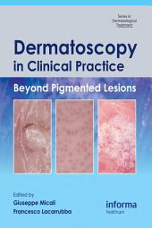 Dermatoscopy in Clinical Practice: Beyond Pigmented Lesions
