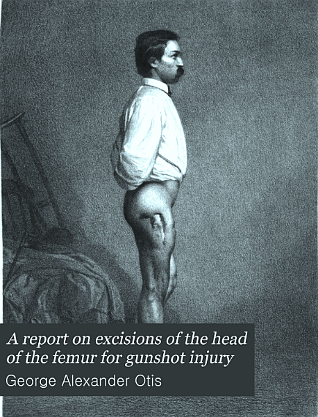 Download A Report on Excisions of the Head of the Femur for Gunshot Injury Book