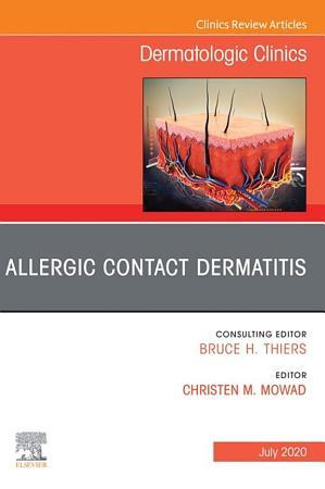 Allergic Contact Dermatitis An Issue of Dermatologic Clinics   E Book PDF