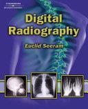 Digital Radiography PDF