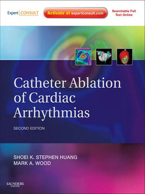 Catheter Ablation of Cardiac Arrhythmias PDF