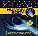 Amazing X rays  Human Body PDF