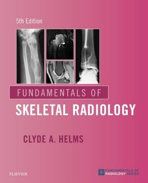 Fundamentals of Skeletal Radiology E Book PDF