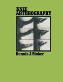 Knee Arthrography