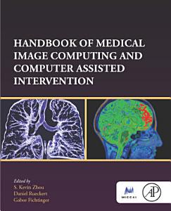 Handbook of Medical Image Computing and Computer Assisted Intervention