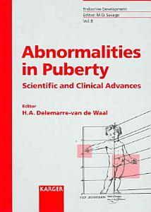 Abnormalities in Puberty PDF