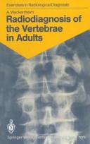 Radiodiagnosis of the Vertebrae in Adults