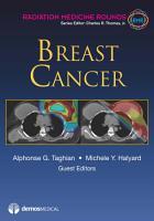 Breast Cancer PDF