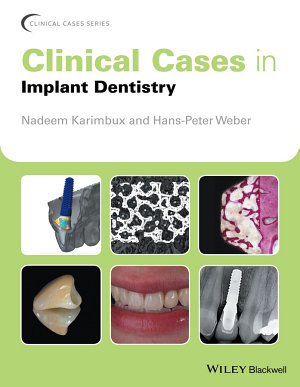 Clinical Cases in Implant Dentistry PDF