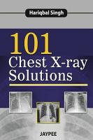101 Chest X Ray Solutions PDF