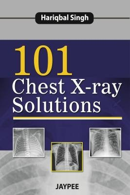 101 Chest X Ray Solutions
