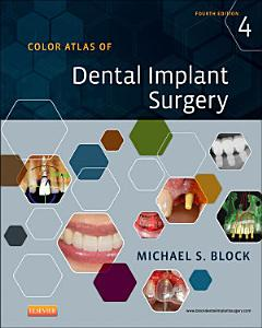 Color Atlas of Dental Implant Surgery   E Book