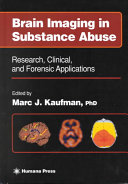 Brain Imaging in Substance Abuse PDF