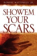 Show'em Your Scars