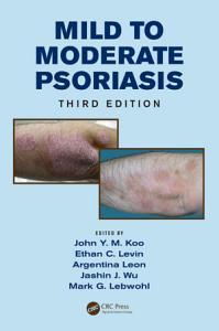Mild to Moderate Psoriasis  Third Edition