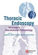 Thoracic Endoscopy PDF