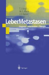 LeberMetastasen: Diagnose — Intervention — Therapie