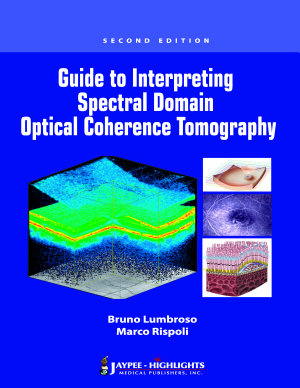 Guide to Interpreting Spectral Domain Optical Coherence Tomography