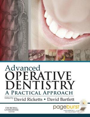 Advanced Operative Dentistry E-Book