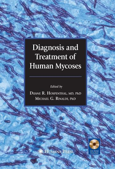 Diagnosis and Treatment of Human Mycoses PDF