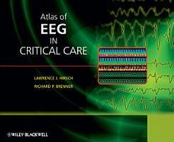 Atlas of EEG in Critical Care PDF