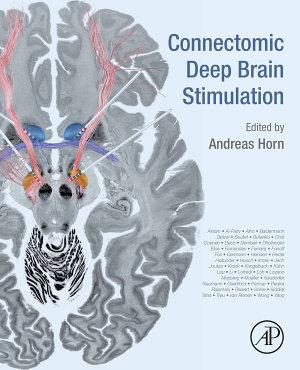 Connectomic Deep Brain Stimulation