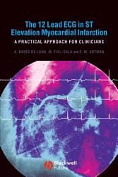 The 12 Lead Ecg In St Elevation Myocardial Infarction Book PDF
